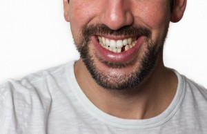 Missing Teeth Affect Your Overall Health