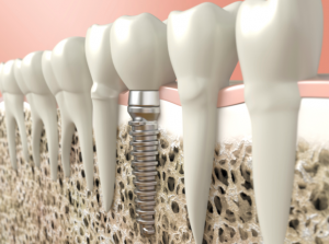 Dental implants provide support for your mouth that can't be found in other treatments for missing teeth.