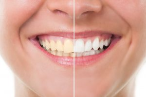 We have the secret to a brighter smile: Teeth whitening!