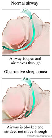Normal airway vs. sleep apnea obstructed airway