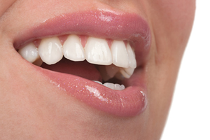 Professional dental veneers by your Naperville dentist are an important way to keep your teeth healthy.